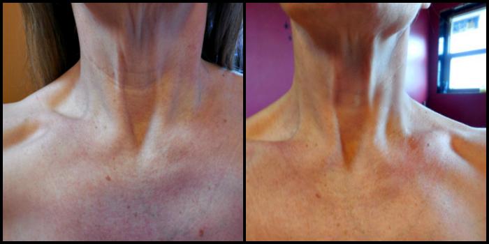 Crepe Erase on neck, #Crepe Erase, #IC, #ad